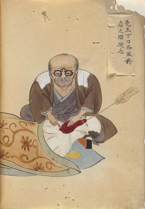 世界で初めて全身麻酔に成功した日本人医師、華岡青洲