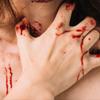【掻いちゃダメ! かゆみは断固拒否!】身体を掻くと起きる7つのデメリット